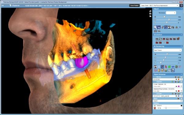3DClassic-3 x 3D = CBCT + ProFace + impression scan