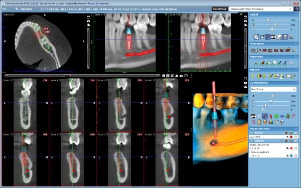 3DClassic-Implant case
