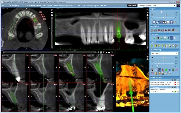 3DPlus- Implant planning